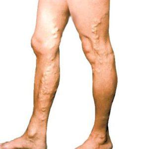 Лечение лазером варикоза