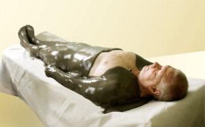 Пелоидотерапия лечение грязями