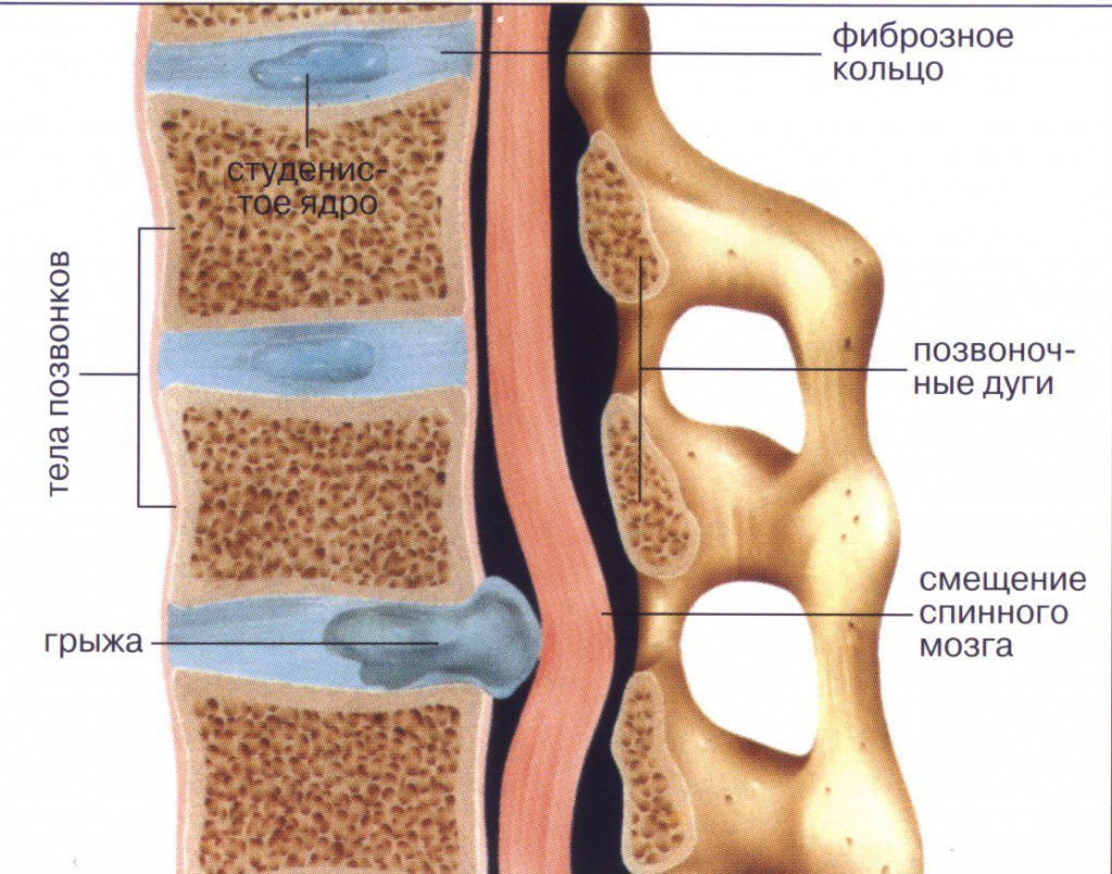 Лечение лазером межпозвоночной грыжи