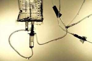 Восстановление после операции на кишечнике