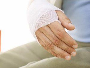 Реабилитация после перелома лучевой кости