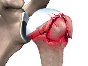 Реабилитация после перелома плеча