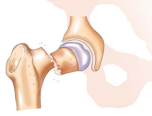 Реабилитация после перелома шейки бедра