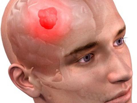 Реабилитация после удаления опухоли головного мозга