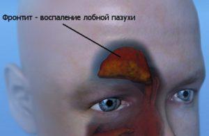 Фронтит лечение физическими факторами реабилитация