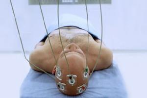Опоясывающий герпес лечение физическим факторами