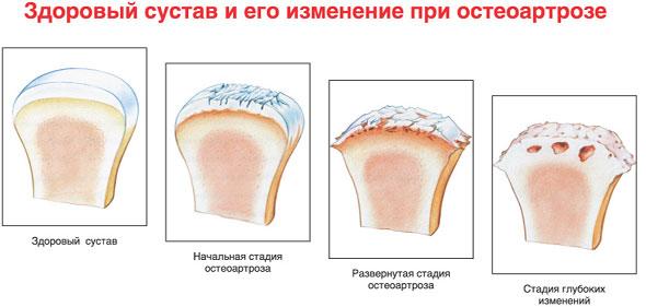 Остеоартроз плечевого сустава физиолечение