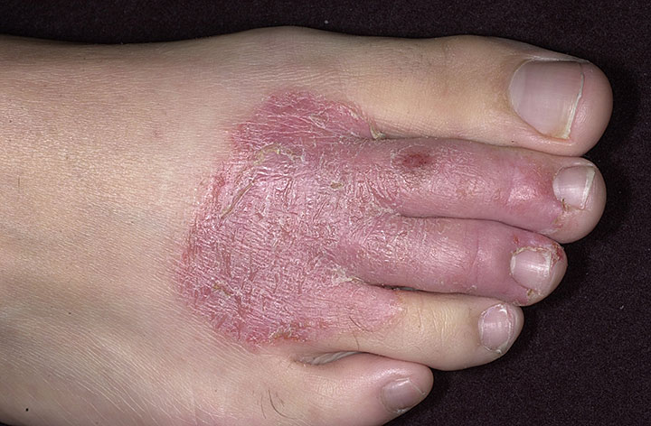 Экзема на ногах и руках какие физиопроцедуры показаны