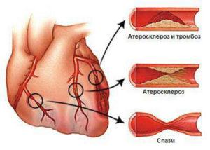 Стабильная стенокардия какие методы физиолечения показаны