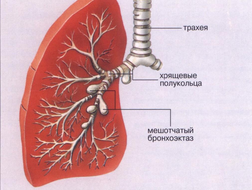 Бронхоэктатическая болезнь легких симптомы лечение физическими факторами