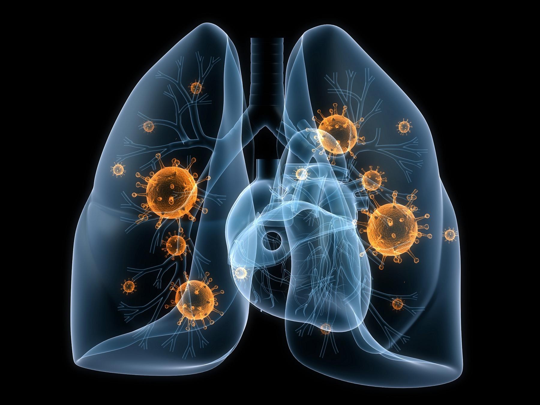 Лечение пневмонии у взрослого физиотерапия