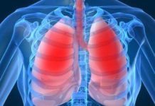 Хроническое обструктивное заболевание легких лечение физическими факторами