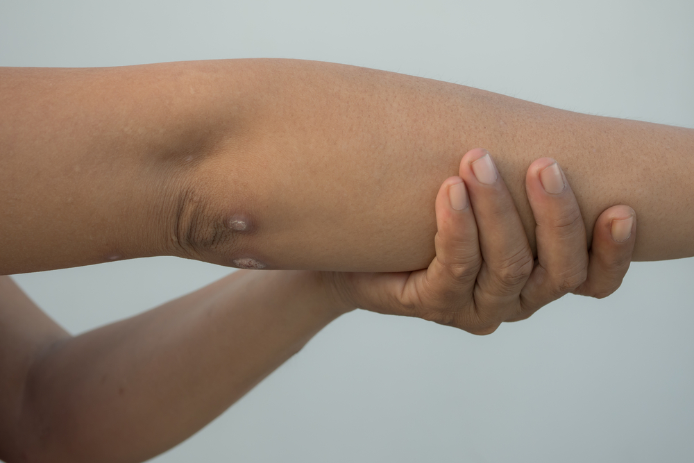 Атопический дерматит у детей физиотерапия