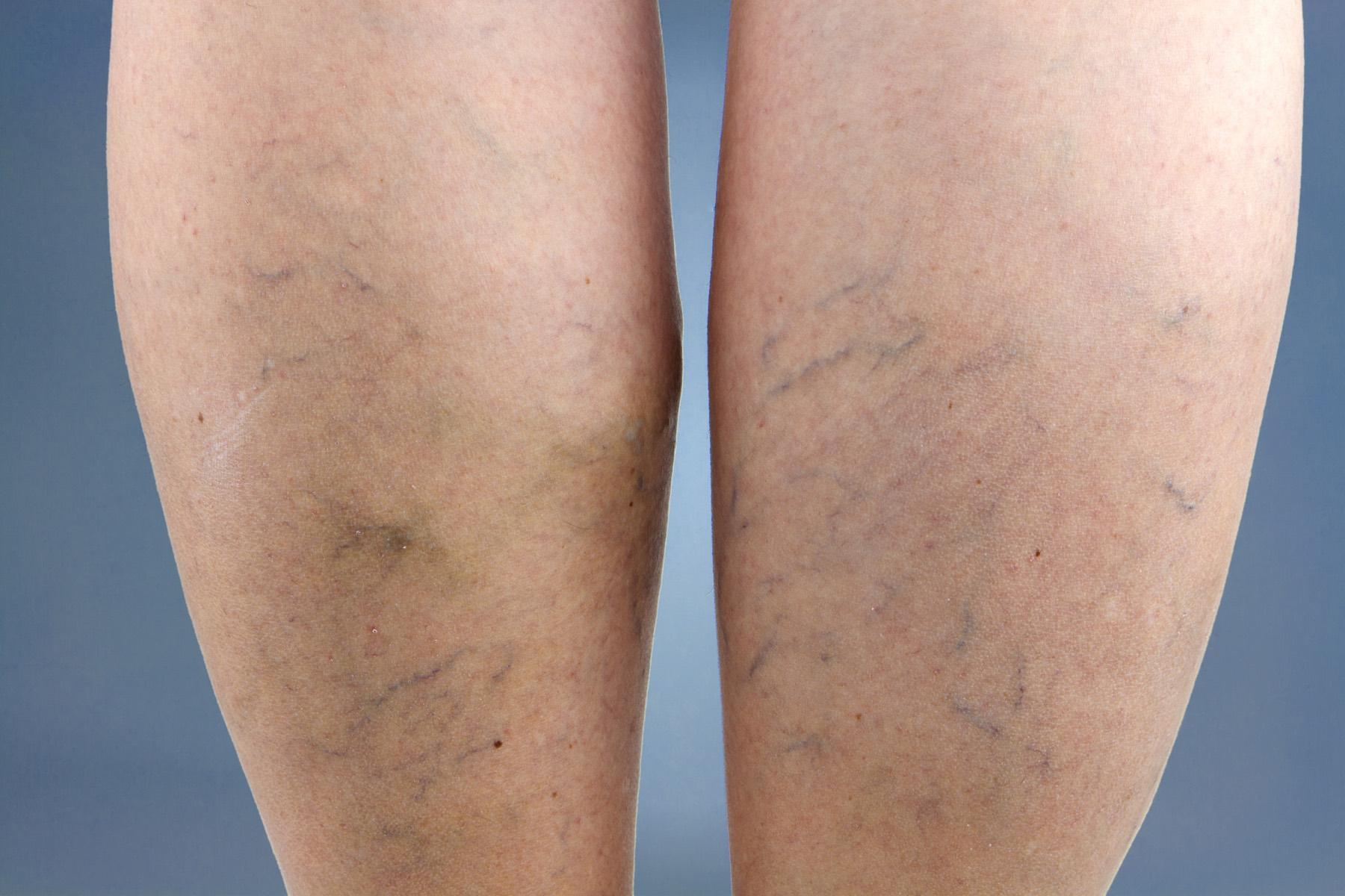 Варикозная болезнь нижних конечностей лечение немедикаментозное
