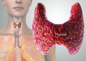 Гипотиреоз симптомы у женщин принципы немедикаментозного лечения