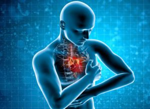 Кардиалгии причины и лечение физическими факторами