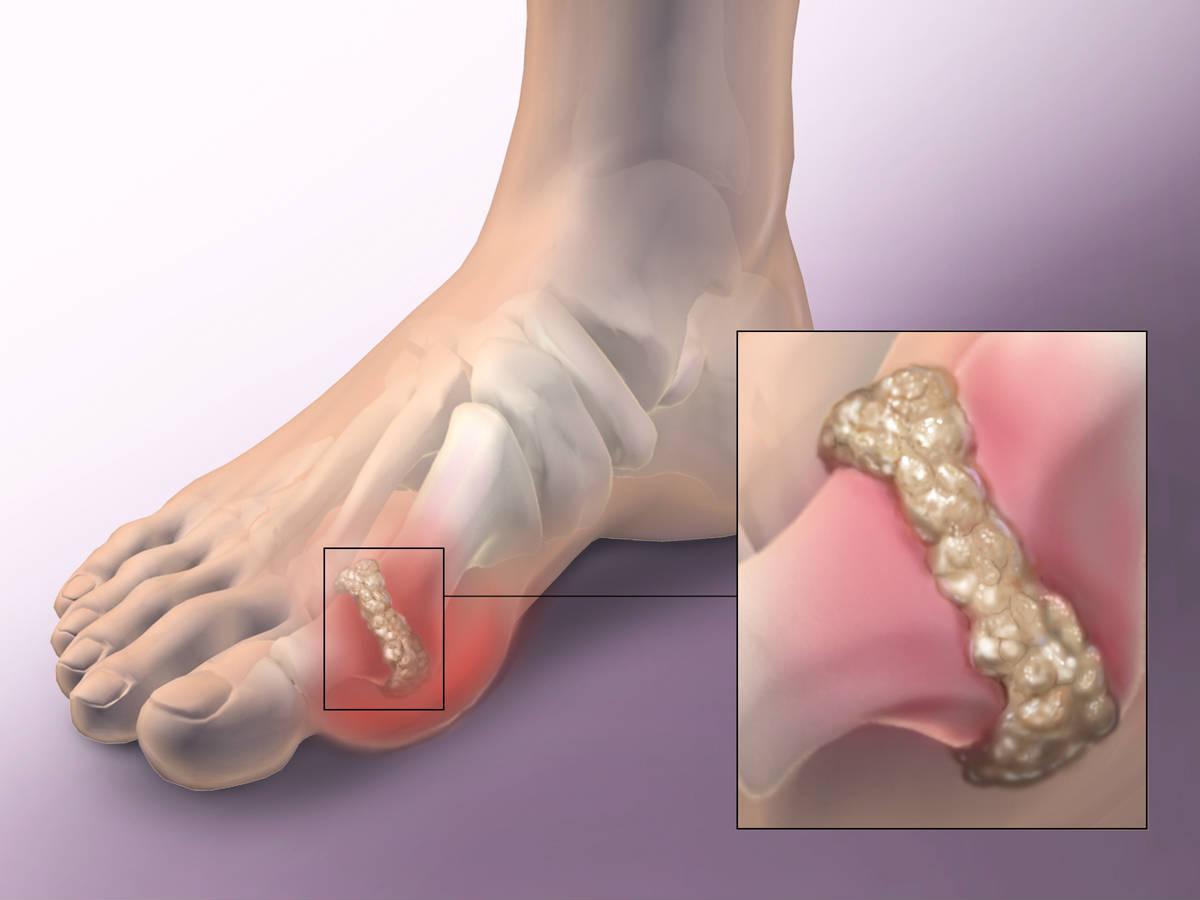 Подагрический артрит лечение физическими факторами
