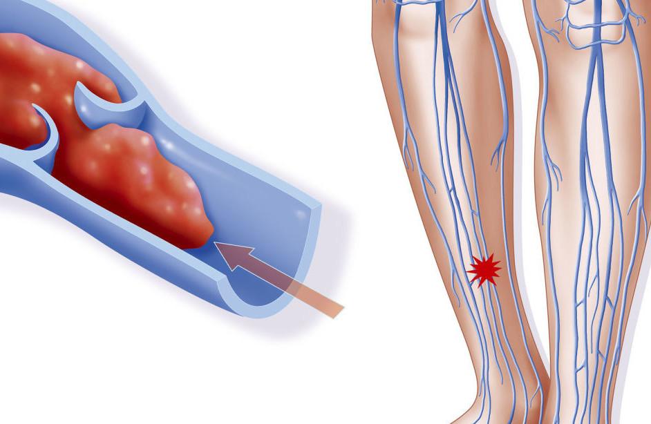 Посттромбофлебитический синдром поможет ли физиотерапия