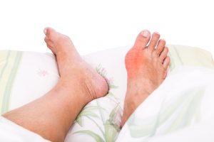 Подагрический артрит лечение в домашних условиях