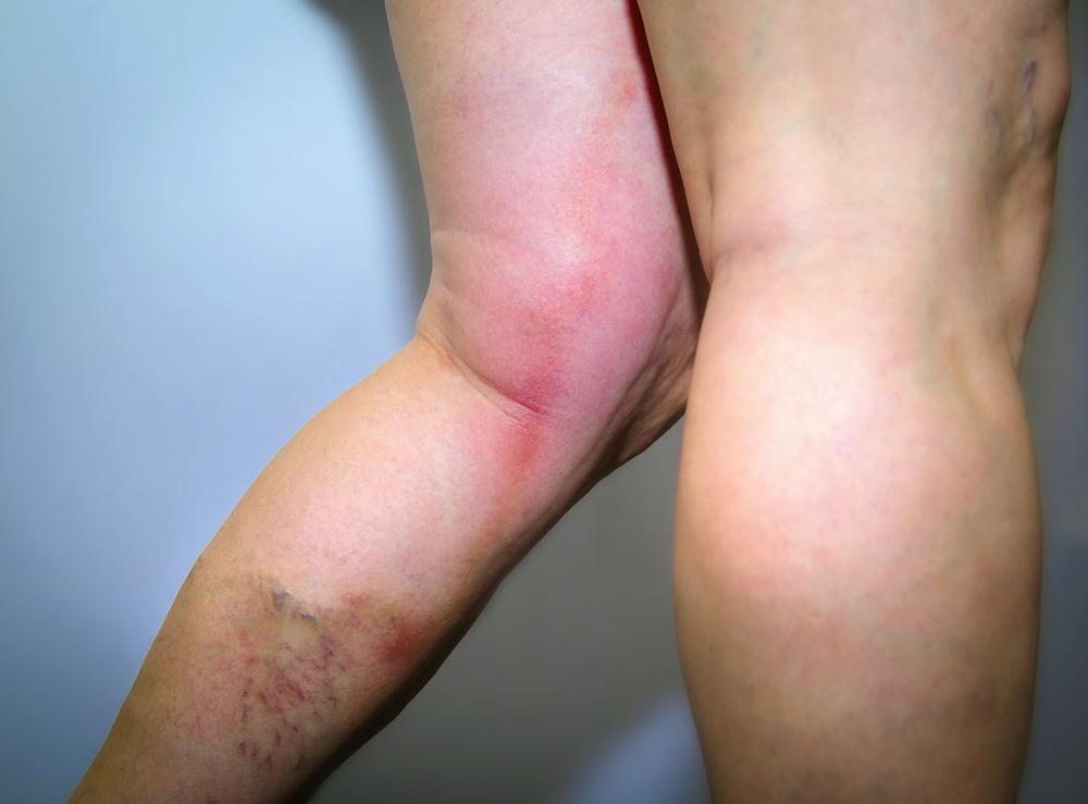 Тромб на ноге лечение в домашних условиях 87