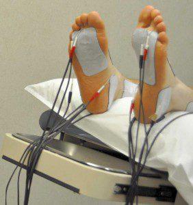 Диабетическая полинейропатия нижних конечностей физиолечение