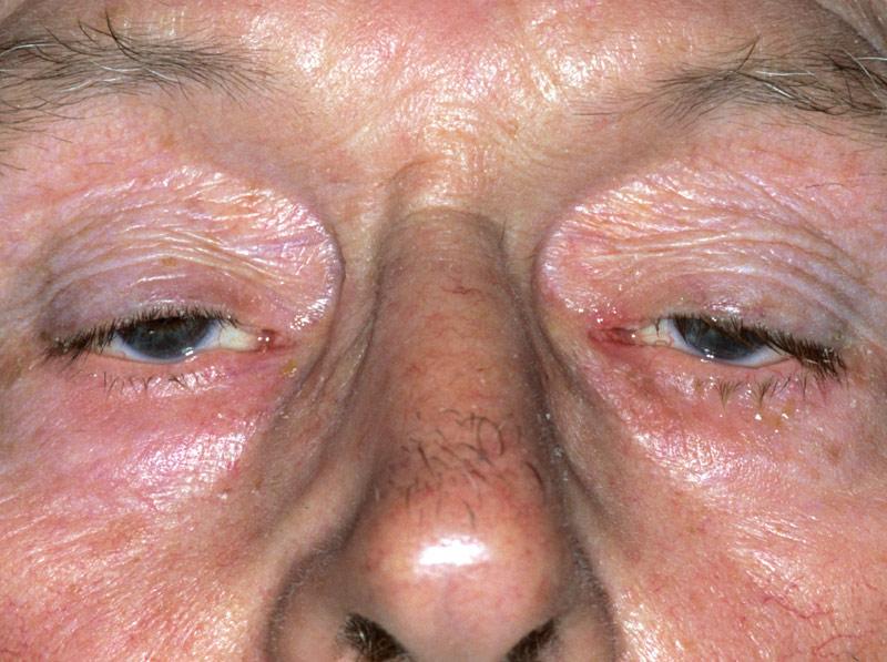 Миастения симптомы физиолечение