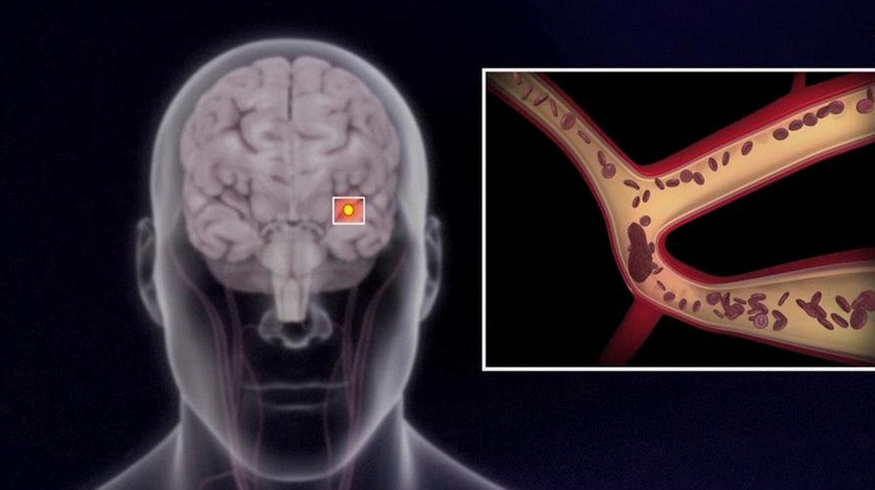 Преходящие нарушения мозгового кровообращения роль физиотерапии в лечении