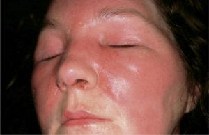 Рожистое воспаление лица лечение физическими факторами реабилитация