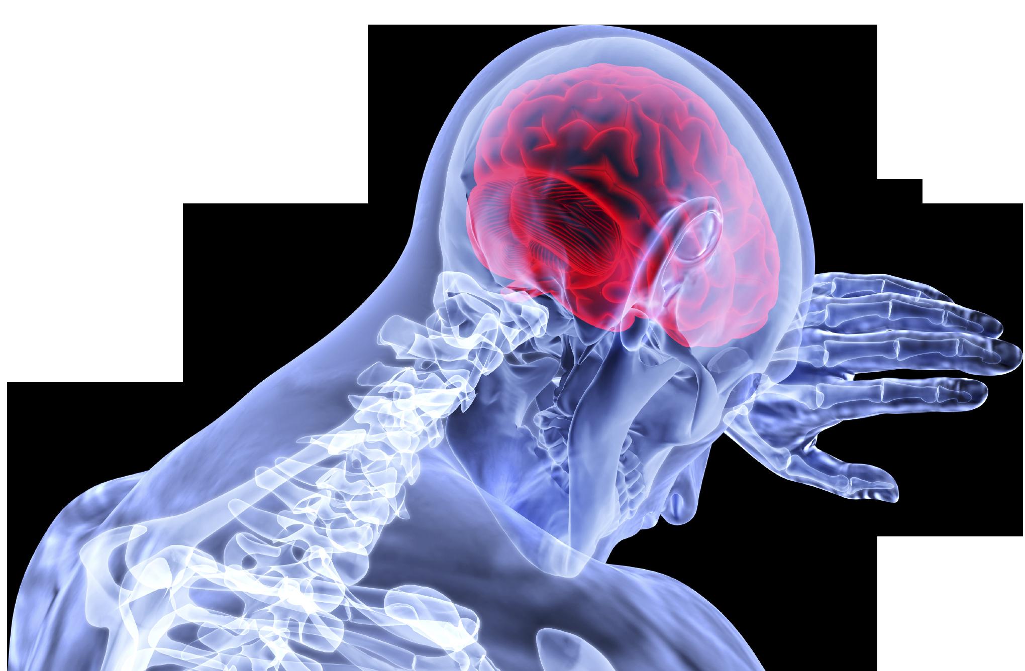 Сотрясение мозга последствия реабилитация