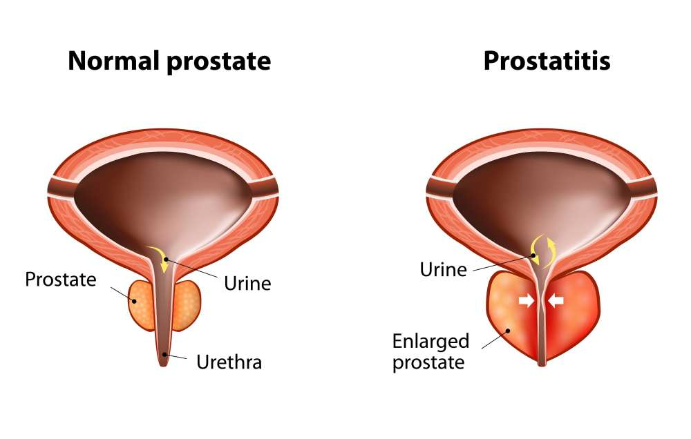 Фото простатита у мужчин и его лечение форум болиголов при простатите