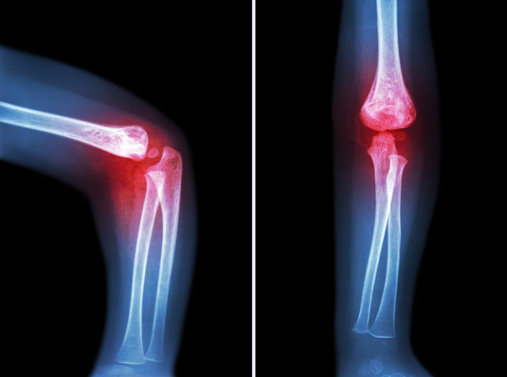 Лечение ревматоидный артрита физиотерапия