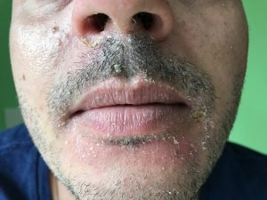 себорея на лице фото