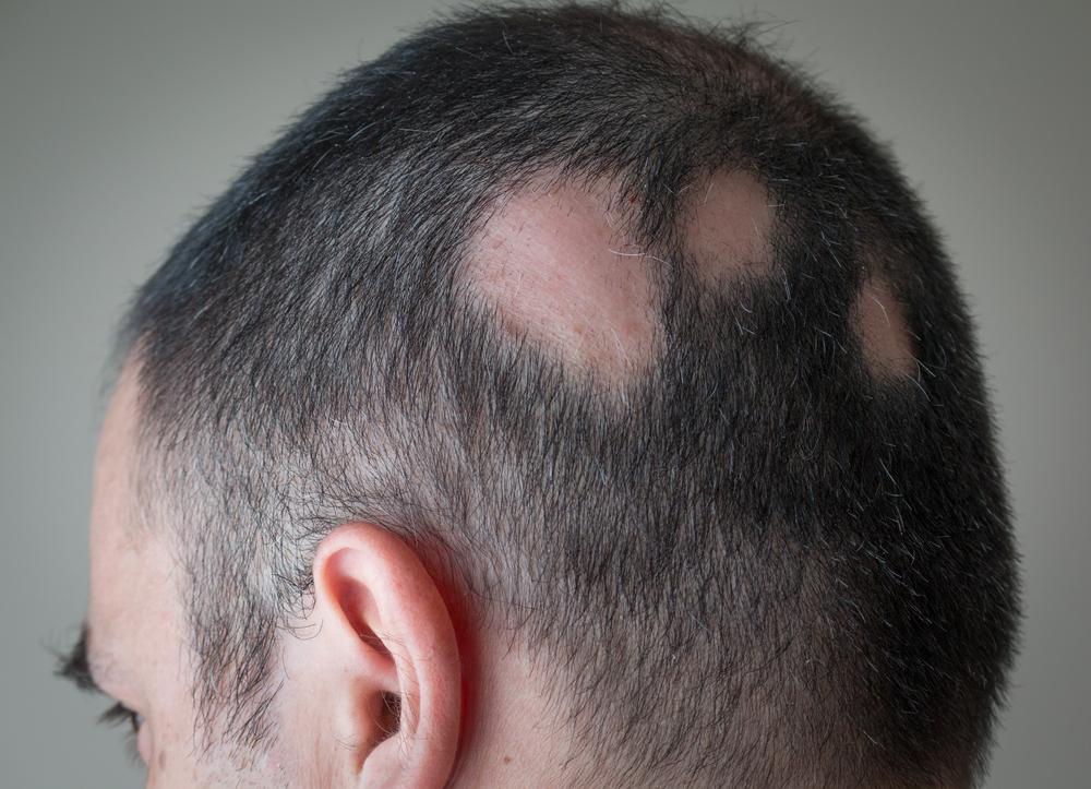Protiv opadanja kose kod zena