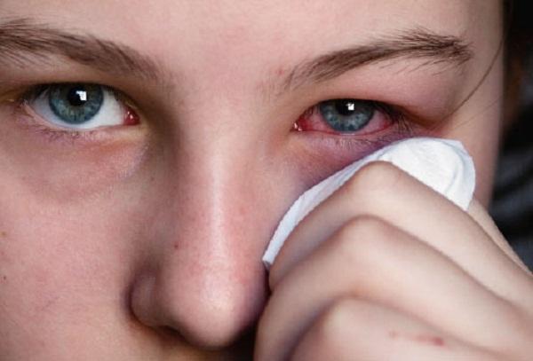 Кератит симптомы и лечение физическими факторами