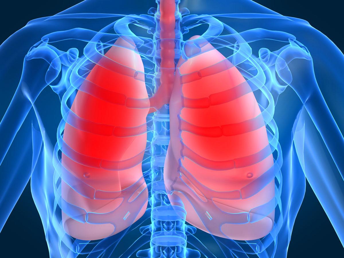 Очаговый и диссеминированный туберкулез легких