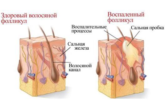 Воспаление волосяных фолликулов показано ли физиолечение