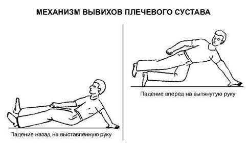 Вывих плеча лечение после вправления физиотерапия