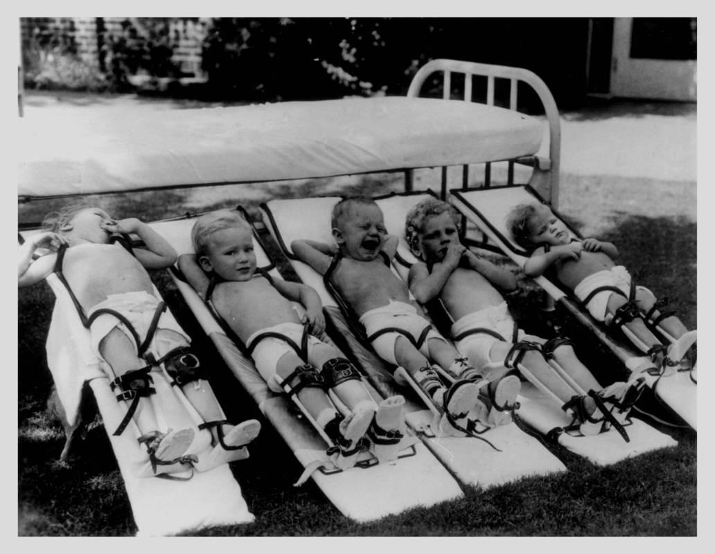 Симптомы полиомиелита у детей место физиотерапии в реабилитации