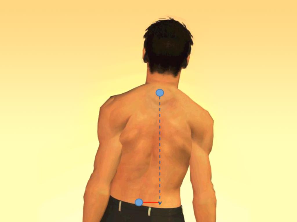 Сколиоз позвоночника у взрослых лечение физическими факторами