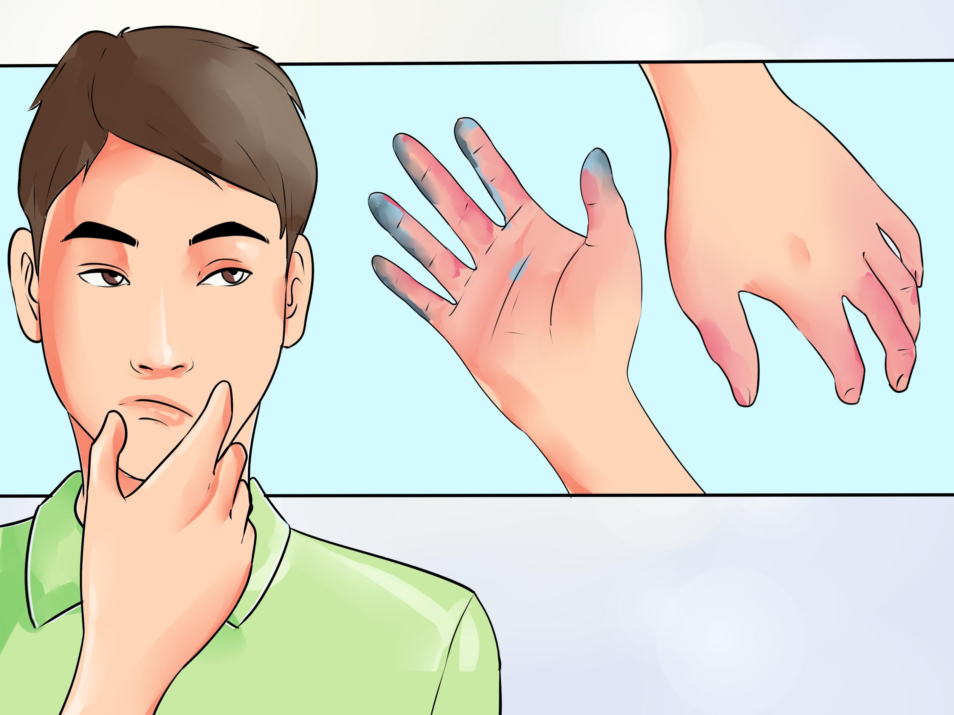 Что делать при обморожении рук физиотерапия