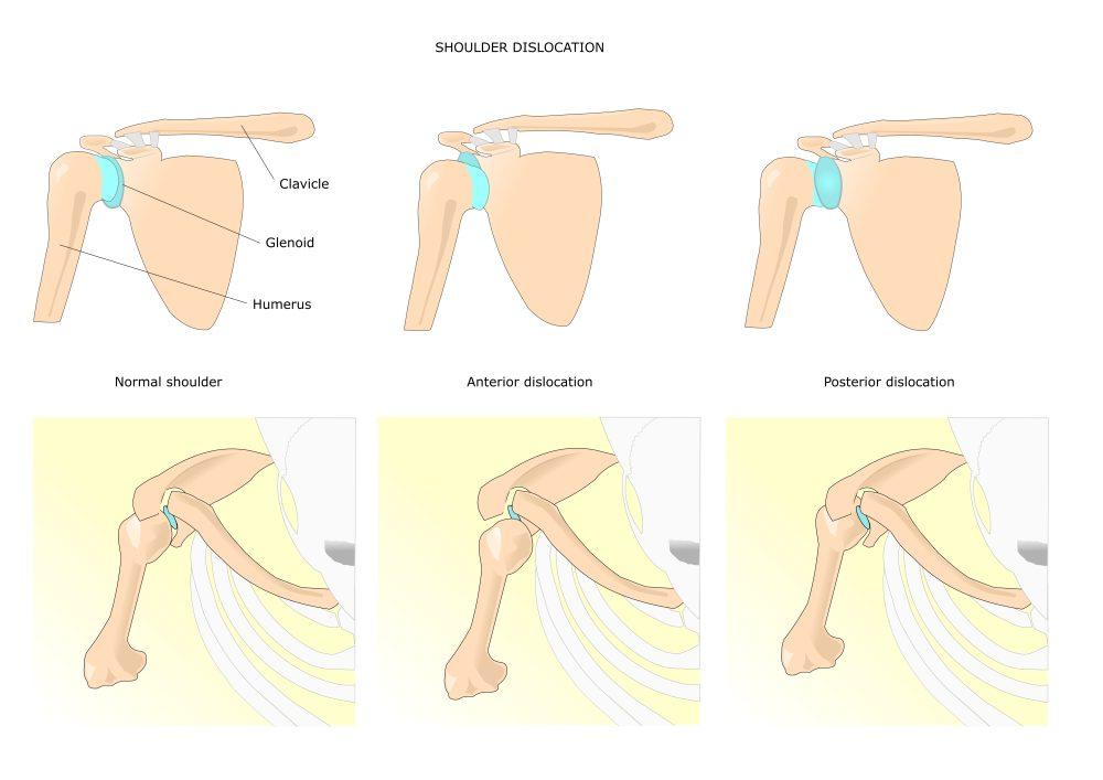 Вывих плечевого сустава лечение