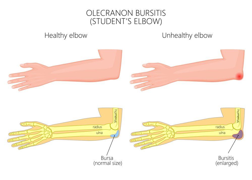 Гимнастика при бурсите локтевого сустава позвоночно реберный сустав