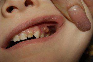 Периостит нижней челюсти методы физиолечения