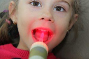 Эритема многоформная экссудативная в полости рта методы физиолечения