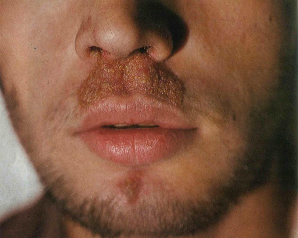 Cикоз носа немедикаментозное лечение