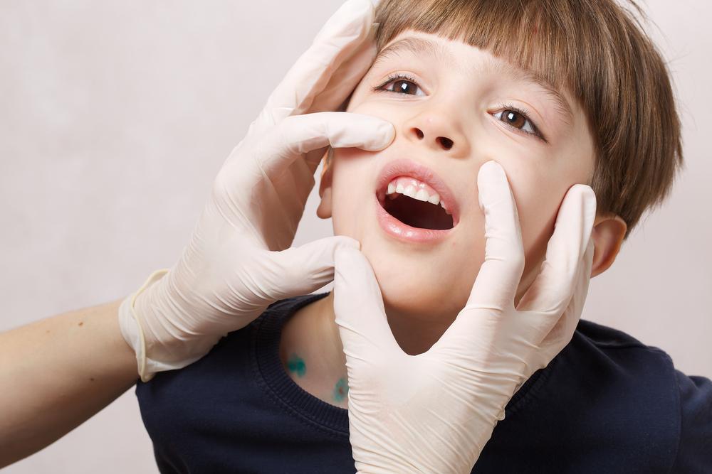 Стоматит и лимфоузлы у детей