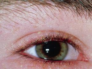 Блефарит симптомы и лечение физическими факторами