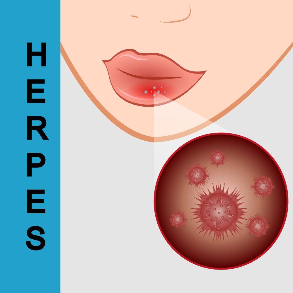 Герпес на половых губах: симптомы и лечение