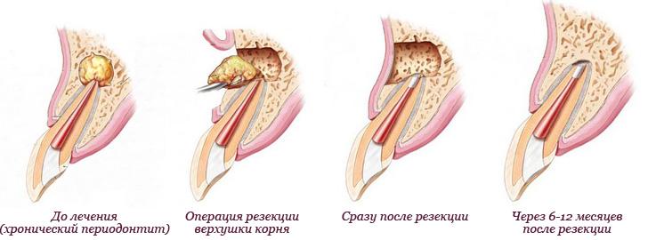 Гранулема и киста зуба что это такое как лечить методы физиотерапии