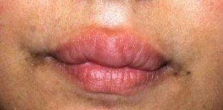 Мелькерссона-Розенталя синдром физиолечение